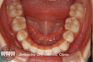 (ブログ) 「叢生(歯並びがガタガタ)の原因と治療法」6