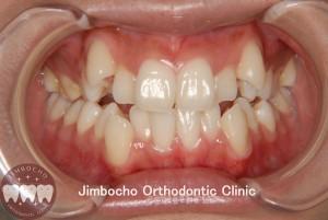 (ブログ) 「叢生(歯並びがガタガタ)の原因と治療法」1
