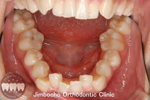 (ブログ) 「叢生(歯並びがガタガタ)の原因と治療法」3