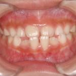 反対咬合の早期治療