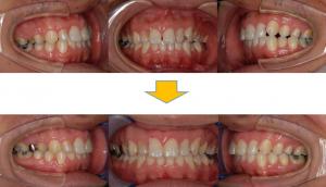 空隙歯列2