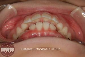 (ブログ) 「乳歯列はすきっ歯が理想的」DSC_0013ロゴのコピー