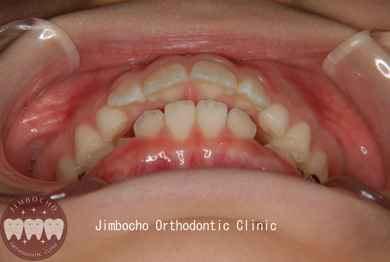 っ 歯 すき 乳歯 乳歯歯並びの良い・悪いとは?前歯が斜めに生えてきたら 歯科衛生士がお口の悩みに答えます