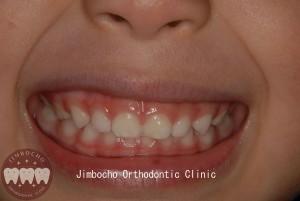 (ブログ) 「乳歯列はすきっ歯が理想的」DSC_0023ロゴのコピー