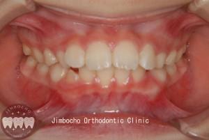 (ブログ) 「乳歯列はすきっ歯が理想的」DSC_0003ロゴのコピー