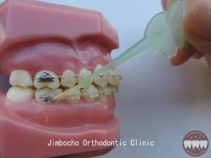 (ブログ) 「顎間ゴム用補助アイテム・エラスティックホルダー」DSCN0877ロゴ