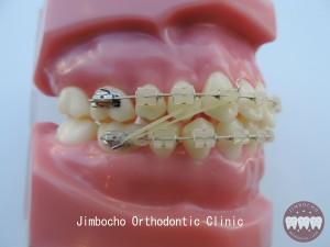 (ブログ) 「顎間ゴム用補助アイテム・エラスティックホルダー」DSCN0874ロゴ