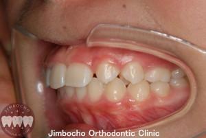 (症例3-2) 空隙歯列(すきっ歯)4