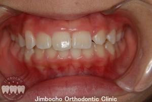 (症例3-2) 空隙歯列(すきっ歯)5