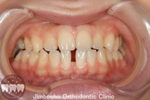 (症例1-1) 空隙歯列(すきっ歯)1