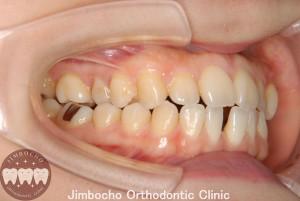 (症例1-1) 空隙歯列(すきっ歯)2
