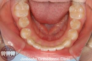 (症例3-2) 空隙歯列(すきっ歯)2