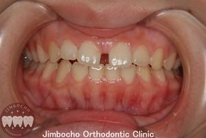 (症例2-1) 空隙歯列(すきっ歯)1
