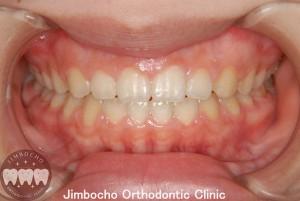(症例2-2) 空隙歯列(すきっ歯)1