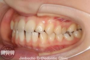 (症例1-1) 空隙歯列(すきっ歯)3
