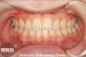 (症例1-2) 空隙歯列(すきっ歯)1