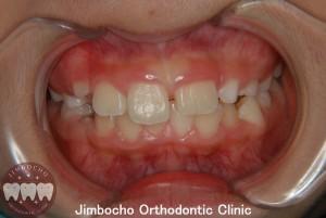 (症例3-1) 空隙歯列(すきっ歯)1