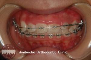 (ブログ) 「歯が生まれつき足りない!」2 (2)ロゴ