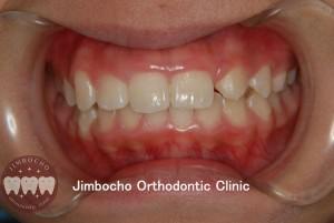 (ブログ) 「歯が生まれつき足りない!」4 (2)ロゴ