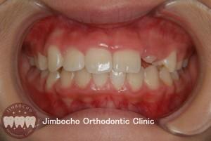 (ブログ) 「歯が生まれつき足りない!」3 (1)ロゴ