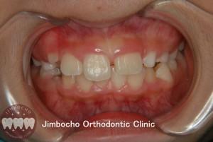 (ブログ) 「歯が生まれつき足りない!」1 (2)ロゴ