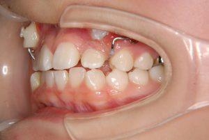 犬歯の開窓牽引4 (4)