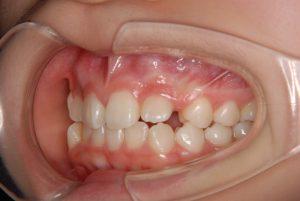 犬歯の開窓牽引1 (2)
