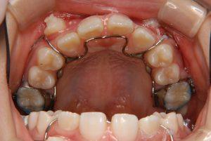 犬歯の開窓牽引4 (1)