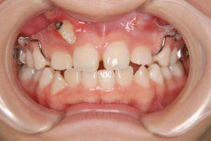 犬歯の開窓牽引3 (2)
