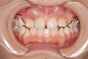 犬歯の開窓牽引2 (2)