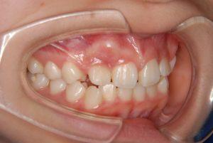 犬歯の開窓牽引1 (4)