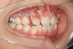 犬歯の開窓牽引3 (3)