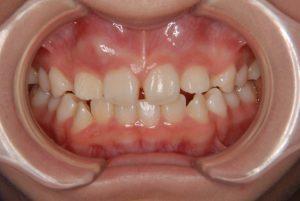 犬歯の開窓牽引1 (3)