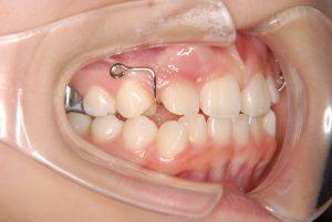 犬歯の開窓牽引2 (3)