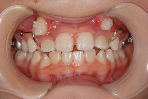 犬歯の開窓牽引4 (2)