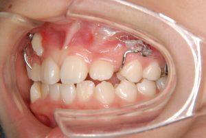 犬歯の開窓牽引3 (4)