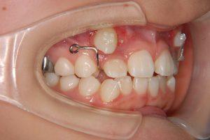 犬歯の開窓牽引4 (3)