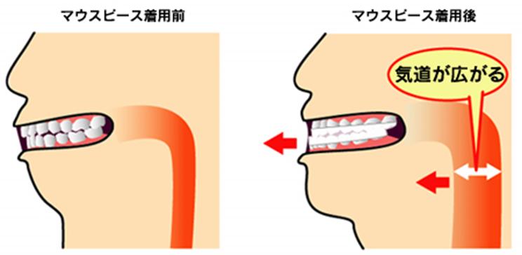 (ブログ) 「睡眠時無呼吸症候群と矯正歯科治療~小児との関連~」6