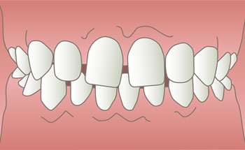 空隙歯列(すきっ歯)のイラスト